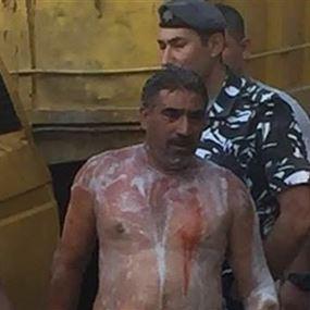 بالصورة.. مياوم حاول احراق نفسه في الإعتصام المفتوح