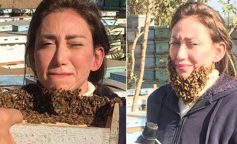 بالفيديو.. ريهام سعيد تسلم وجهها للنحل