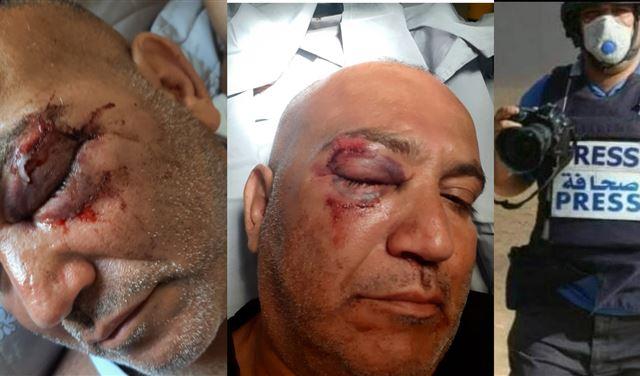 في ذمة وزارتي الصحة والإعلام: الصحافي أحمد عثمان يصارع فقدان النظر بعد اشتباكات أمس!