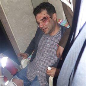 بالصور.. الاعتداء على محامين بسبب انتخابات