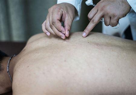 إنجاز علمي يمهد لتجديد الجلد البشري